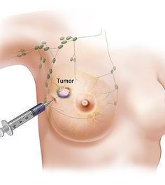Yes that is cannabis being injected into a breast tumor. Why you ask? Because it cause cancer sells to commit suicide while protects healthy blood cells. Yes weed cures cancer! Read about it, googles a great place to begin your learning.