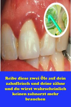 Rub these two oils on your gums and teeth and you probably will not need a denti. Rub these two oils on your gums and teeth and you probably will not need a denti. Oral Health, Dental Health, Health Diet, Health And Wellness, Health Fitness, Health Care, Receding Gums, Pizza, Atkins Diet