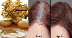 Effective Home Recipe For You To Rid Of White Hair you have white hair and / or tend to thin? So, to help you get rid of it once and for all, come and discover this natural and effective recipe! Grey Hair Reversal, Peeling Potatoes, White Hair, Gray Hair, Tips Belleza, Hair Loss, Hair Hacks, Dyed Hair, Health And Beauty