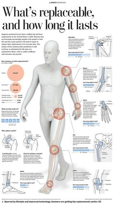 Graphic for the Health section describing which and how joints are replaced as well as their estimated duration. Illustrator, Lightwave 3d and Photoshop.