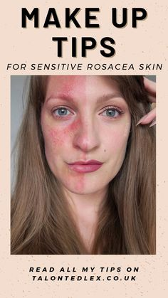 Visit my blog to find out my tips for make up to cover rosacea (or acne, or scars, or facial redness!) Discover the best make up tips for sensitive skin: the products I recommend and application tips. Rosacea make up tips.  #talontedlex #rosacea #sensitiveskin #makeuptips #makeupadvice #makeuptutorial