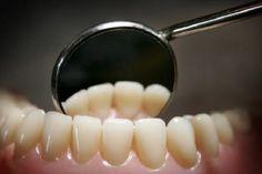 #Minnesota's Dental Therapist Experiment Seems to be Working - WJON News: WJON News Minnesota's Dental Therapist Experiment Seems to be…