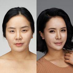#Banobagi #Plasticsurgery #Cosmeticsurgery #Beauty #Women #Gangnam #Seoul #Korean #Makeover #Life #Health #Faceshape #Faceline #Facecontour #Jaw #Jawline #orthodontic #braces #totalmakeover #teethcorrection #kbeauty #beautiful #newlife #changelife #zygoma #cheekbone #plasticsurgeryinkorea