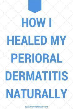 How I Healed My Perioral Dermatitis Naturally www.sarahkayhoffman.com #PerioralDermatitis