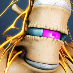 how an anterior lumbar interbody fusion alif can stop the pain