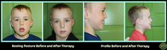 Oral Myofunctional Therapy of York | PHOTOS.  Orofacial Myofunctional Disorder caused by compromised airway.  Airway resolved by the ENT...Muscles retrained at OMT of York!  What a difference 6 months can make!