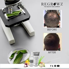 Regrowz is a natural formulation containing potent organic ingredients that provide the perfect cure for male pattern baldness stimulate Hair Regrowth Grow Thicker Hair, How To Grow Your Hair Faster, Grow Long Hair, Grow Hair, New Hair Growth, Hair Growth Tips, Natural Hair Regrowth, Natural Hair Styles, Hair Remedies For Growth