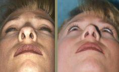 Honey Face Cleanser, Celebrity Plastic Surgery, Celebrities, Puerto Rico, Health, Maya, Future, People, Inspiration