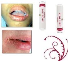 Blisters, cold sore, dried or chapped lips can ruin any weekend fun. Let aloe lips soothes, nourish and moisturize your lips for that sexy and beautiful lips. An amazing product, handy for men's suit pocket and lady's clutch purse. Have a great weekend. Aloe Lips, Forever Business, Chapped Lips, Cold Sore, Forever Living Products, Beautiful Lips, Weekend Fun, Health Matters, Your Lips