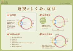 遠視のしくみと症状_infographics