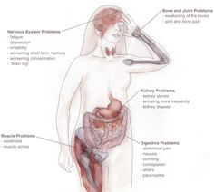 Symptoms Of Thyroid Disease The thyroid gland is responsible for the metabolism of every cell in the body. Whenever the thyroid gland is overactive or underactive, signs and symptoms of thyroid disease will occur. Parathyroid Symptoms, Thyroid Disease Symptoms, Adrenal Fatigue Symptoms, Kidney Disease Stages, Polycystic Kidney Disease, Cholesterol Symptoms, Chronic Kidney Disease, Autoimmune Disease, What Causes Kidney Failure
