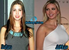 ivanka trump breast implants before and after rumors