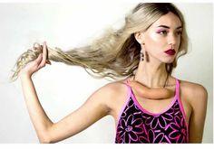 Lara Kitchen,  una modelo australiana de 20 años,  confesó a sus seguidores en Instagram que lleva 6 años padeciendo alopecia:Kitchen es calva y utiliza pelucas de pelo natural.  Asimismo,