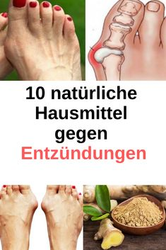 10 natural home remedies for inflammation remedies … Health And Nutrition, Health Fitness, Types Of Arthritis, Arthritis Remedies, Natural Home Remedies, Health Articles, Natural Health, Health And Beauty, Detox