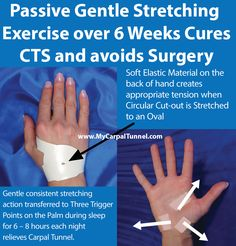 Passive Gentle Stretching Exercise for 220 Hours over 6 Weeks Cures CTS and avoids Surgery
