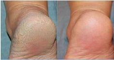 Tratamento caseiro com bicarbonato de sódio para deixar os pés macios e bonitos