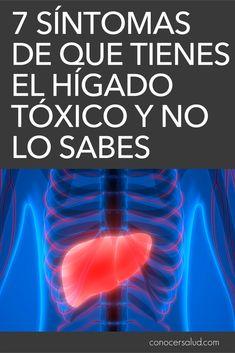 7 síntomas de que tienes el hígado tóxico y no lo sabes #salud