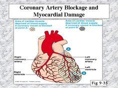 51 Best Coronary Arteries images   Cardiac catheterization ...