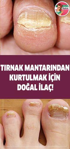 Natural remedy for getting rid of nail fungi! Pedicure Nails, Toe Nails, Fungal Infection, Nail Fungus, Nail Treatment, Health Advice, Fungi, Nail Care, Natural Remedies