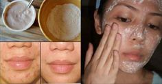 Creams to Remove Face Stains - Creams to Remove Face Stains - How To Remove The Acne Scars, Wrinkles And Stains With This Mask In A Record Time! - Homemade creams to remove face stains - Homemade creams to remove face stains How To Get Rid Of Acne, How To Remove, Mascara Hacks, Remove Acne, Remove Stains, Acne Scar Removal, Face Wrinkles, Prevent Wrinkles, Les Rides