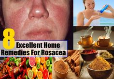 8 Rosacea Natural Remedies, Treatment And Cure