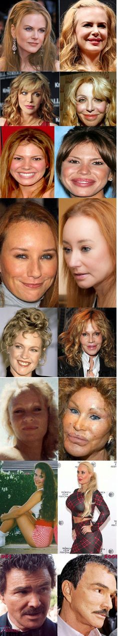 beauty? ~ I believe natural is beautiful.  Let's keep it natural.  What plastic surgery can do.  ...