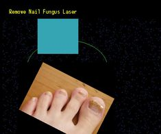 Remove nail fungus laser - Nail Fungus Remedy. You have nothing to lose! Visit Site Now