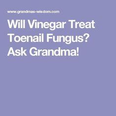 Will Vinegar Treat Toenail Fungus? Ask Grandma!