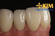 Răng sứ có bền không - thời gian sử dụng là bao lâu?