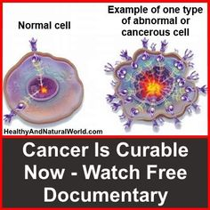 "Cancer Is Curable Now - Watch Free Documentary. ""CANCER is curable NOW"" is the breakthrough that brings alternative cancer treatment to the mainstream. Watch the full free documentary here."