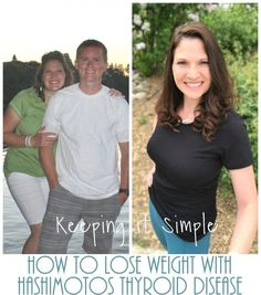 Tips on how to lose weight with Hashimotos. I share my journey to a healthy lifestyle despite the draw backs of the thyroid disorder Hashimotos. Hashimoto Thyroid Disease, Hypothyroidism Diet, Thyroid Diet, Thyroid Health, Losing Weight With Hypothyroidism, Hashimotos Disease Diet, Thyroid Symptoms, Autoimmune Disease, Fibromyalgia