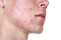 Managing pimples in the summer - Jan 16 Newsletter