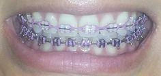 braces colors - lavender love this! Dental Braces, Teeth Braces, Braces Smile, Braces Retainer, Cute Braces Colors, Ceramic Braces, Braces Tips, Getting Braces, Color Lavanda