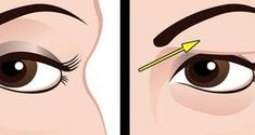 Voici comment traiter naturellement les paupières tombantes Here's how to treat drooping eyelids naturally. The results are beautiful Fix your beauty problems Face Mask Recipe Saggy Eyes, Droopy Eyelids, Beauty Secrets, Diy Beauty, Beauty Hacks, Beauty Tips, Face Care, Body Care, Chin Hair