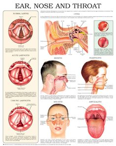 29 best ENT ears nose throat images on Pinterest | Health, Ears and ...