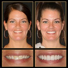 As you can see we are experts at Smile Makeovers... we love what we can do for you! Call 512.333.7777 for a free consult.  #veneers #veneerscost #cosmeticdentistry #Smile #austincosmeticdentistry #Cosmeticdentist #cosmeticdentistaustin #reconstructivedentist #dentalimplants #smilemakeover #ATX #Austin #cosmeticdentistsofaustin #VeneersAustin #VeneersPorcelainCosts #sedationdentistaustin #veneersbeforeandafter Fix Teeth, Sedation Dentistry, Teeth Shape, Dental Veneers, Porcelain Veneers, Smile Makeover, Smile Teeth
