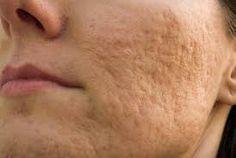 """adolescencia. El tipo de acné que tienen muchos adolescentes se llama acné vulgaris (el significado """"vulgaris"""" no es tan negativo como parece, significa """"del tipo más frecuente""""). Suele aparecer en la cara, el cuello, los hombros, la parte superior de la espalda y el pecho. Los folículos capilares de la piel (o poros) contienen glándulas sebáceas. Estas glándulas producen sebo, que es la grasa que lubrica el pelo y la piel. La mayor parte del tiempo, las glándulas sebáceas fabrican la…"""