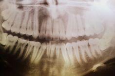 Francisca Valli. Teeth.