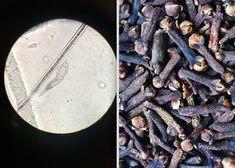 Mit dieser Methode wirst Du Parasiten los und reinigst deinen Körper – Du benötigst nur 2 Zutaten…   LikeMag   We Like You