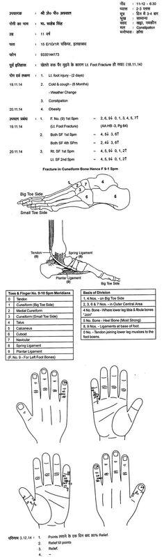 Fractura de pie