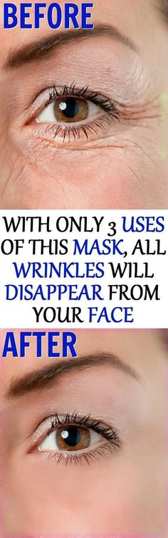 In today's article, we are going to show you, how to make a mask, that will assist you in erasing all wrinkles from your face, with only 3 uses ! #homemadewrinklecreamshowtomake