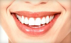 Groupon - $1,999 for a Dental Implant, Abutment, and Crown at Southern Dental Implant Center ($4,575 Value) in Cordova (Alliance of Cordova Neighborhoods). Groupon deal price: $1999.00