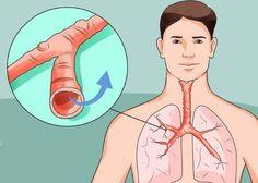 Fisiopatologia y mecanismo de la tos