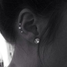 Two auricles and tragus