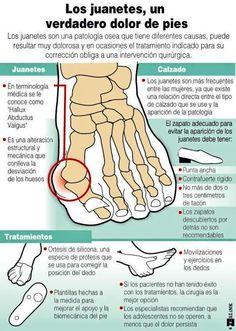 Los #juanetes , un verdadero #dolor de #pies.