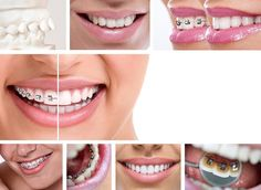Dental braces are a best method to shape your unstructured teeth. There are various types of braces available in the market. Know about different types of dental braces and choose best one for you. Fake Braces, Braces Cost, Dental Braces, Teeth Braces, Dental Care, Braces Girls, Teeth Implants, Dental Implants, Different Types Of Braces