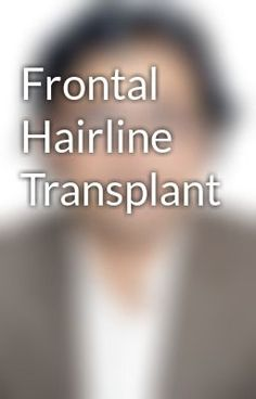 "Read ""Frontal Hairline Transplant"" #wattpad #short-story"