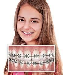 Metal Braces For Adults Implant Dentist Orthodontist Dental Braces