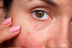 ¿Cómo cuidar la piel sensible?