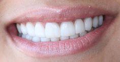 Dental Life, Smile Dental, Smile Teeth, Perfect Teeth, Perfect Smile, Crazy Lipstick, Veneers Teeth, Color Correcting Concealer, Beautiful Teeth